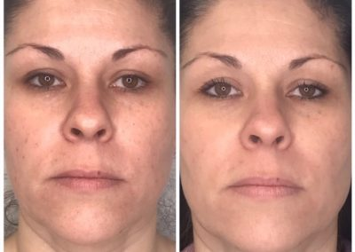 Before and after Skin Irregularity Treatment