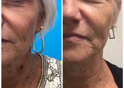 Before and after Skin Irregularity Treatment Keratosis (1 treatment)
