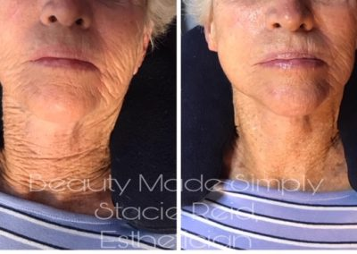 Before and after XO8 Stem Cell Facial (1 treatment)